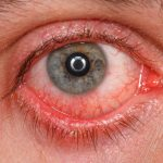 Pinkeye, Conjunctivitis and Homeopathy