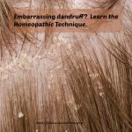 Scratch, Scratch, Itch, Itch: Homeopathy Relieves Dandruff