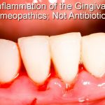"What's a ""gingiva"" and how does it get ""itis""?"