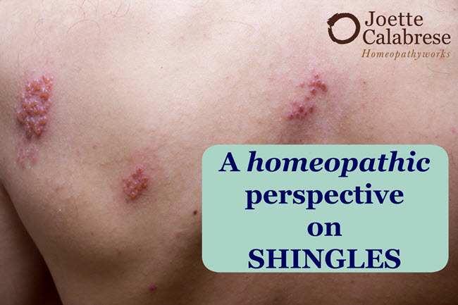 homeopathic-perspective-on-shingles-edited